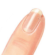Einreißender Fingernagel